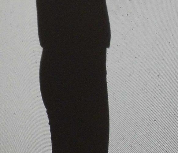 Schatten5